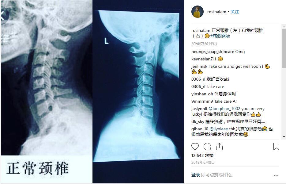公平公义在哪里?前TVB女星林夏薇被撞,法官却判对方无罪!插图1